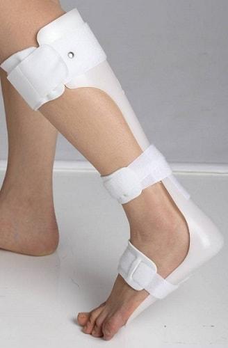 voetorthese-tegen-klapvoet-kopen