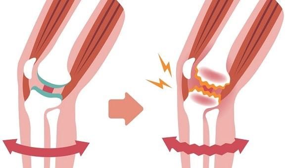 artrose-knie-oorzaken-symptomen-behandeling