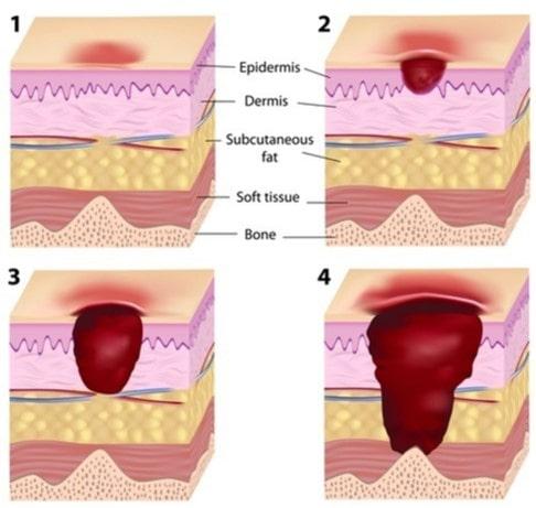 decubitus-wat-is-oorzaken-symptomen-kussen
