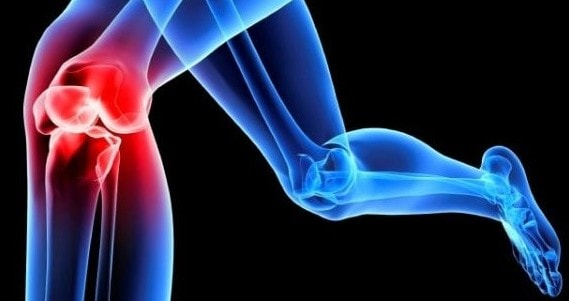 soorten-knieklachten-kniebraces